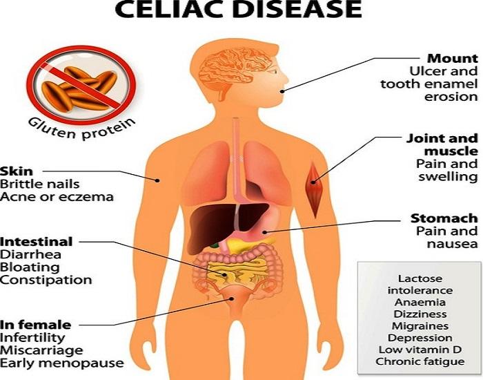 Celiac disease – gluten intolerance