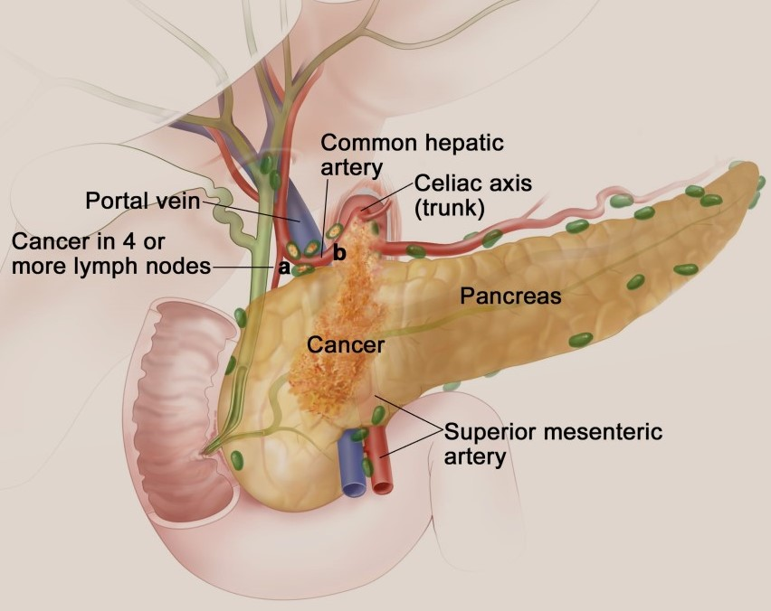 Chemotherapy for Pancreatic Cancer